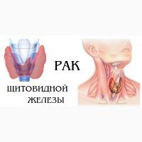Операции опухолей щитовидной железы в Харбине. Китай