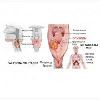 Рак горла, гортани, миндалин. Лечение