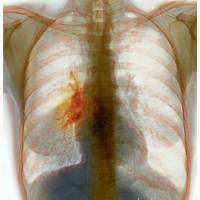 Рак легких. Лечение